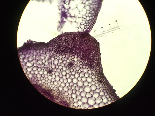 显微照片:芹菜叶柄横切的厚角细胞