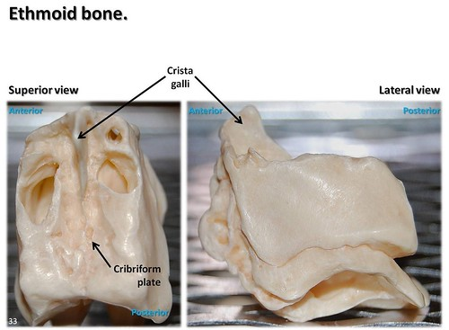 ethmoid bone, superior and lateral views with labels - axial, Sphenoid