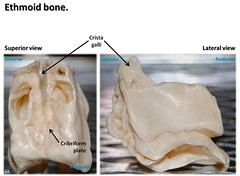 Ethmoid bone, superior and lateral views with labels - Axial Skeleton Visual Atlas, page 33 - by robswatski