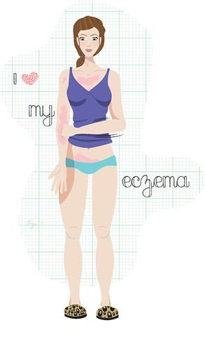 I <3 my eczema