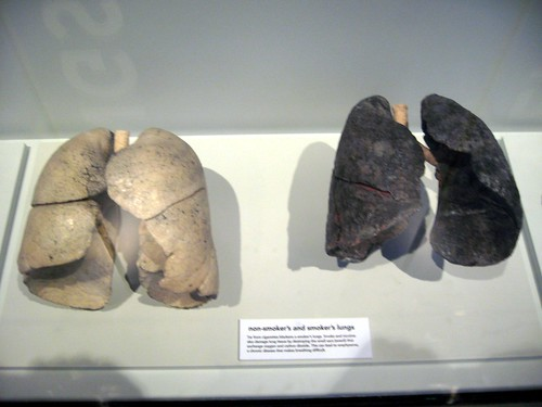 smoking lungs vs healthy lungs. Normal Lung amp; Smokers Lung