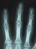 fracture (ballardi) Tags: people japan tokyo hand finger xray fracture 20100614