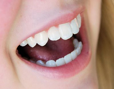clareamento dental caseiro como fazer