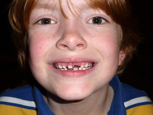 Lost his top front tooth!