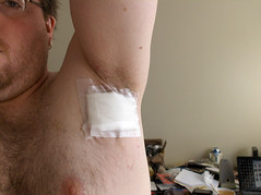 South Africa: New Breakthrough in Wound Dressing