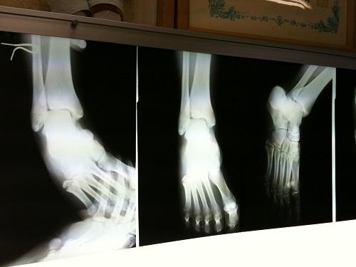 【近況報告】ウチの奥さんが足を骨折しまして・・・