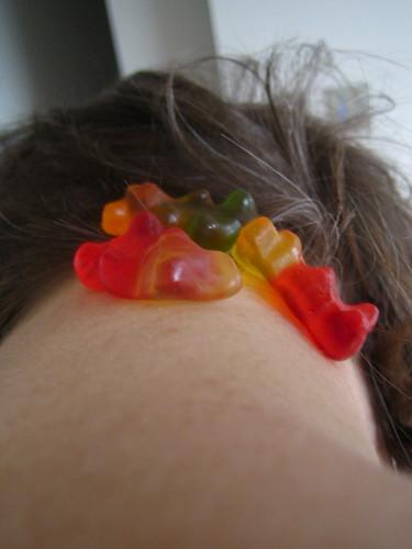 modern leech treatment?