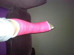 l_a1b18ec2734e440a8c92441993db218c (chilltown1) Tags: toes cast ankle