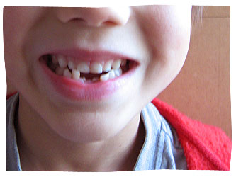 Callum's Teeth