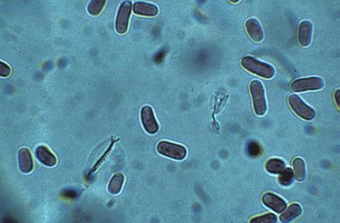 Nitrifikáló baktériumok