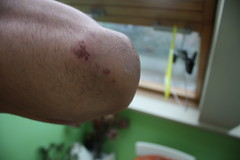 Grazed Elbow