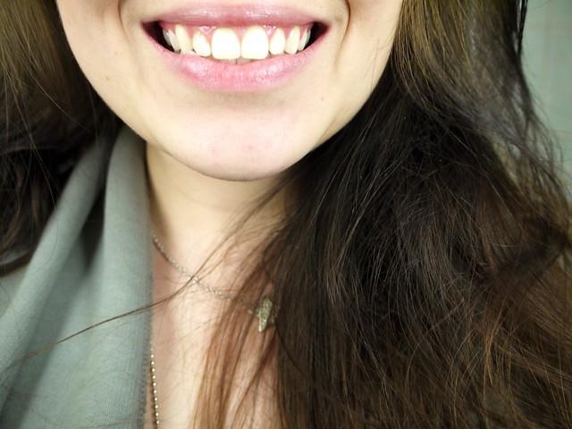 Uudet hampaat
