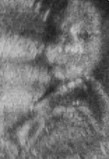 Morgana 9-9-10_22wks