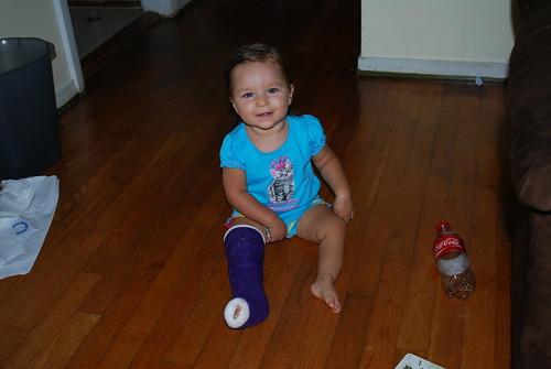 Broken leg :-(
