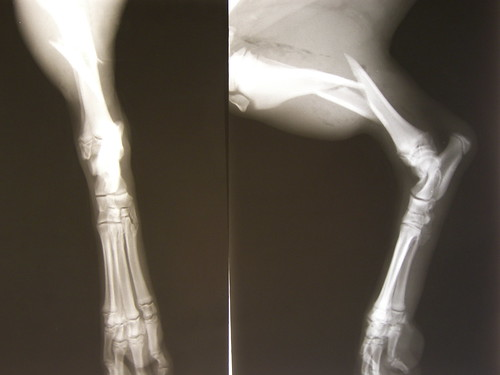 Radio : fracture tibia + fibula