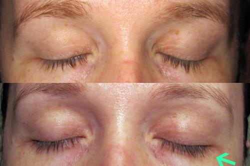 before and after without mascara made 8.30.10