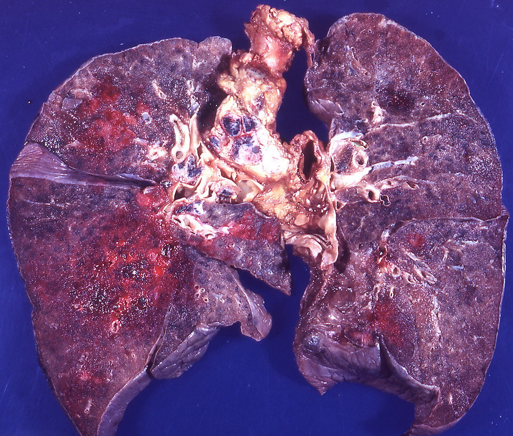 This tumour is characterized