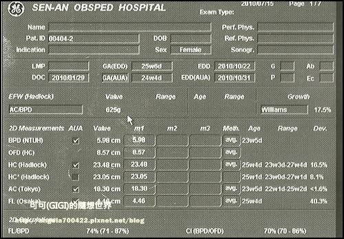 20100716-第二胎懷孕25週超音波