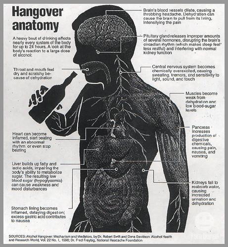 hangover-anatomy-2
