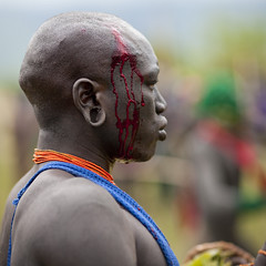 Wounded warrior at Donga stick fighting - Ethiopia (Eric Lafforgue) Tags: africa blood artistic culture tribal ornament tribes bodypainting tradition ethiopia tribe ethnic wound rite sang surma tribo headdress adornment afrique pigments headwear ethnology headgear tribu omo 1705 eastafrica thiopien suri etiopia ethiopie etiopa  etiopija ethnie ethiopi  etiopien suris etipia  etiyopya  nomadicpeople surmas         peoplesoftheomovalley
