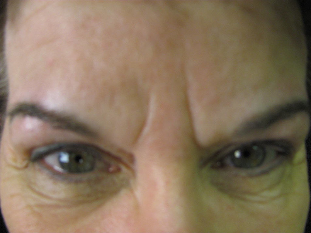 Eyebrow Correction After