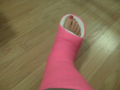 158452348-130495b355e1ed8f49cd4a31ff528cf9.4c87c110-full (chilltown1) Tags: toes cast ankle