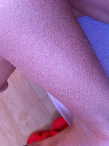 dry skin, need moisturisation