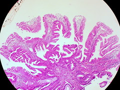 Traditional Serrated Adenoma of Colon (euthman) Tags: traditional specimen pathology colon photomicrograph serrated adenoma colorectum traditionalserratedadenoma