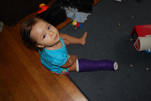 Her new purple cast