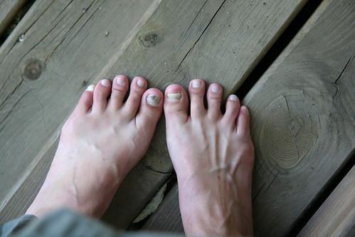 toenail trauma
