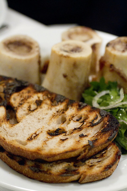 Bone Marrow 2