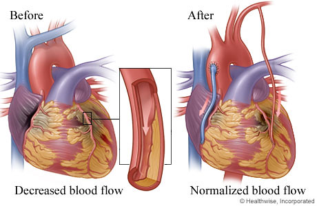 Bypass (CABG) | Dr Krasopoulos