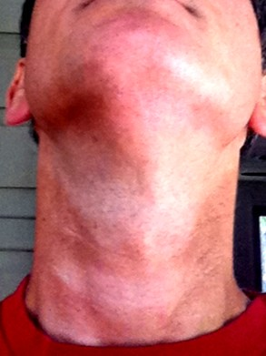 The amazing recumbent neck tan