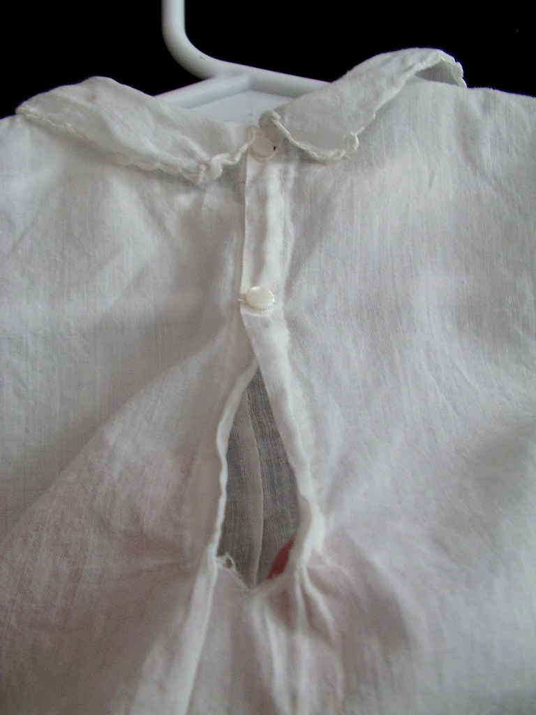 button closure and tear