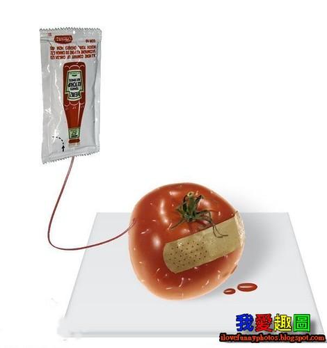 緊急輸血中