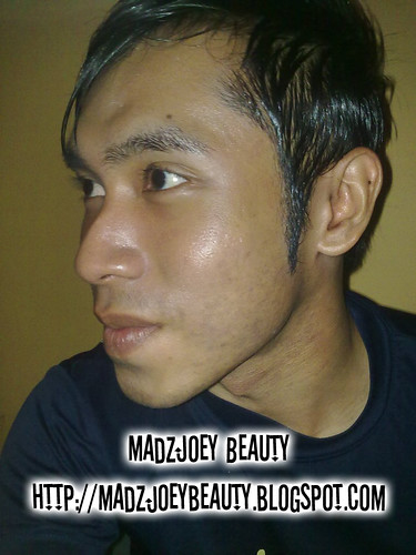 Glutathione Injection Before and After http://madzjoeybeauty.blogspot.com/
