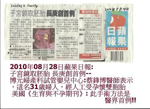 2010年08月28日蘋果日報: 子宮鏡取胚胎 長庚創首例--博元婦產科試管嬰兒中心:蔡鋒博醫師表示,這名31歲婦人,經人工受孕懷雙胞胎  美國《生育與不孕期刊》: 此手術方法是醫界首例!!