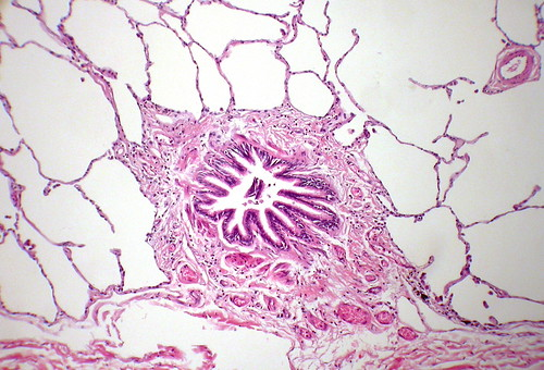 normal microscopic specimen pathology lung