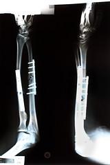 Robocop is back ! (bozzo2m) Tags: os robocop breakingbones radiostriptease