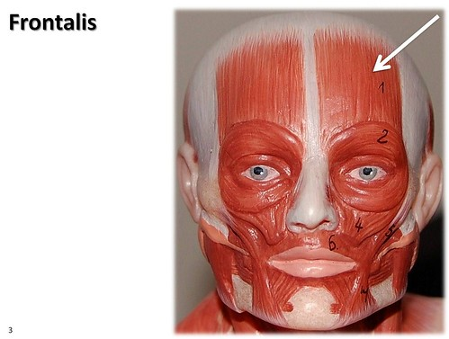 Frontalis muscles | HUMAN MUSCULAR SYSTEM