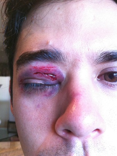 Brandon's black eye