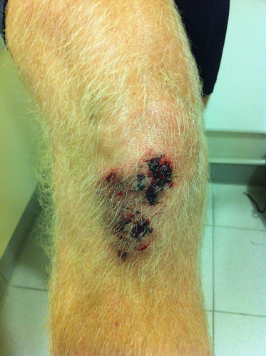 Andy's injuries 3