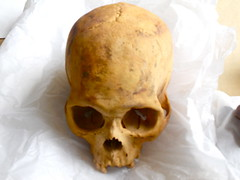 Archeological Skull in EPAF Morgue