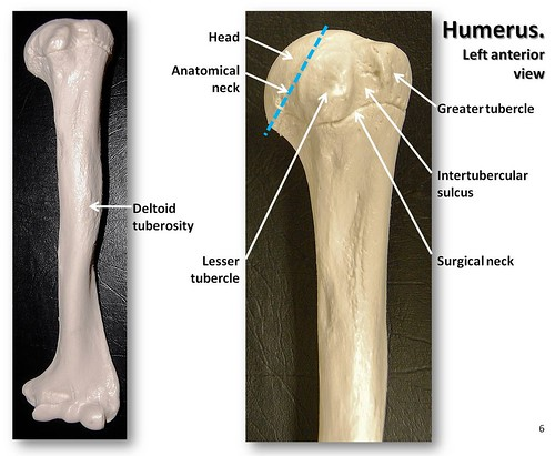 Humerus, anterior view with labels - Appendicular Skeleton Visual ...