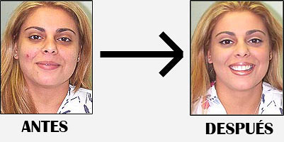 no mas acne funciona