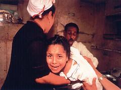 Criança sofrendo a A Mutilação Genital Feminina (sigla MGF) ou Circuncisão Feminina