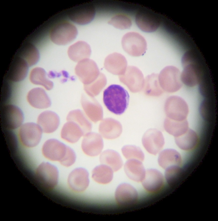 white blood cells: lymphocyte! oh, and a cluster of thrombocytes.