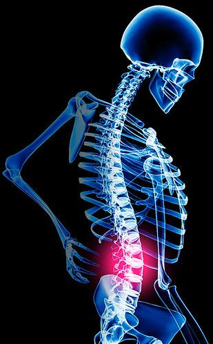 chiropractor lowerbackpain