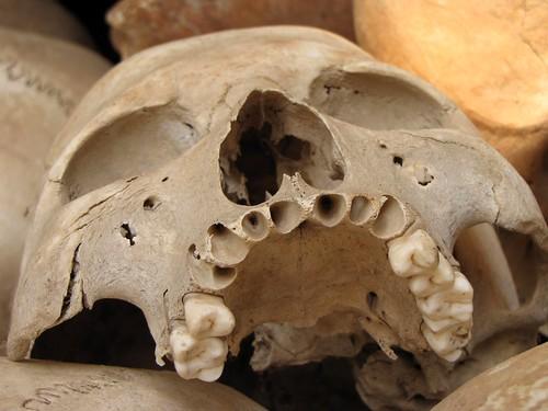 Choeung Ek - Human Skull