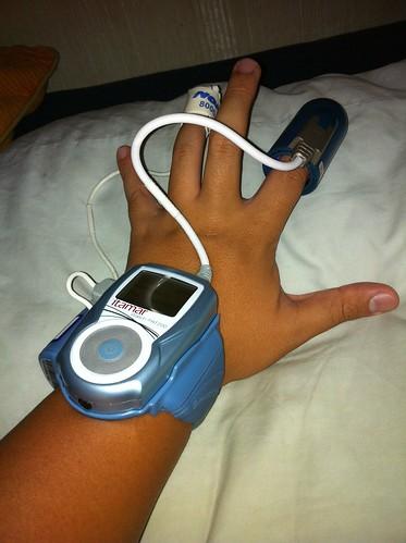A sleep apnea diagnostic tool